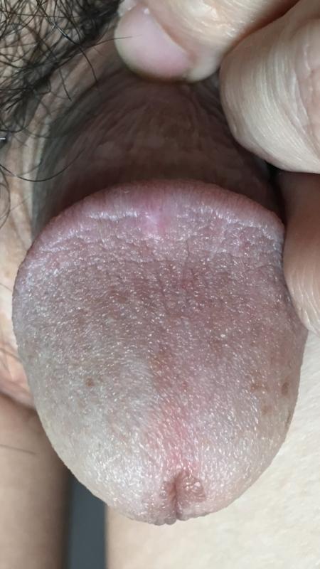 Shiny Bump On Penis 42