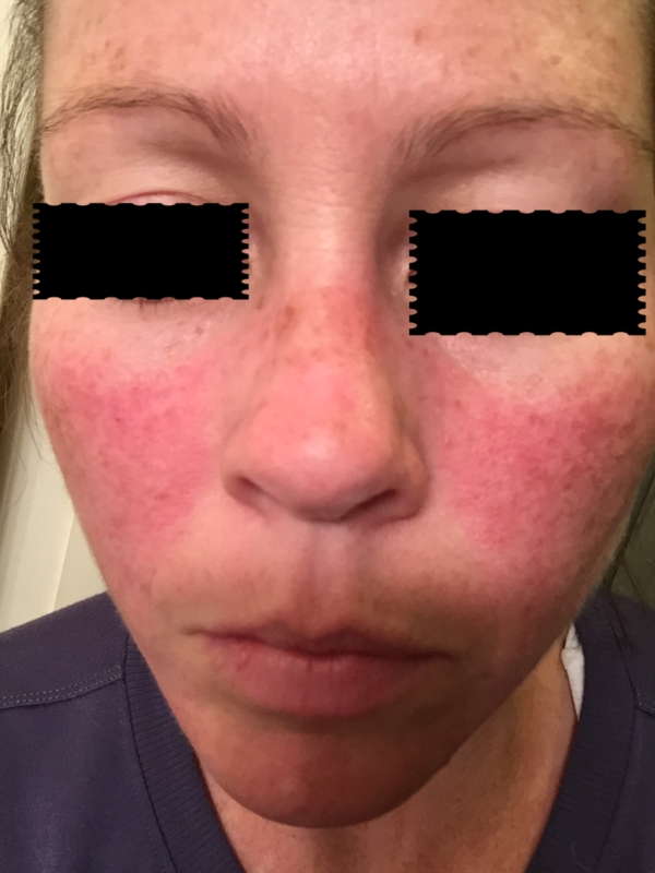 Red face Assessment Questionnaire - RightDiagnosiscom