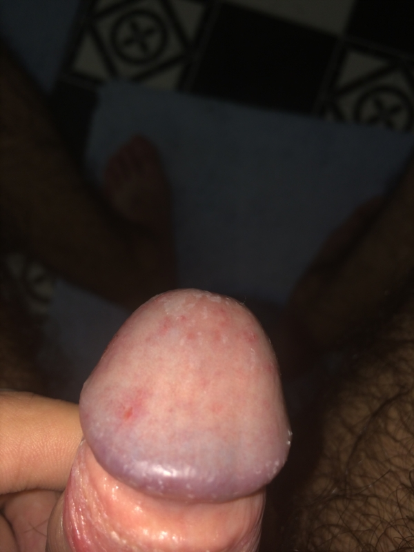 Rashes On Penis 68