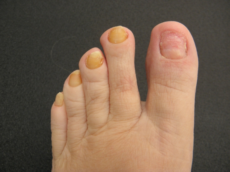 yellow nail syndrome #11