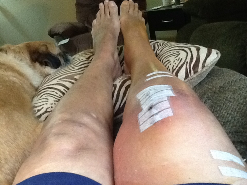 Foot Swelling After Hip Replacement 57