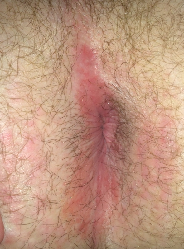 Pugs and rash near anus