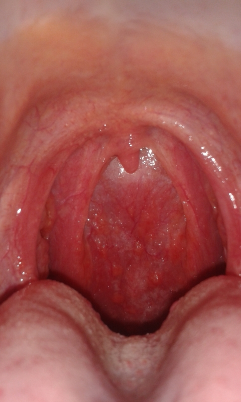 Bumps in back of throat