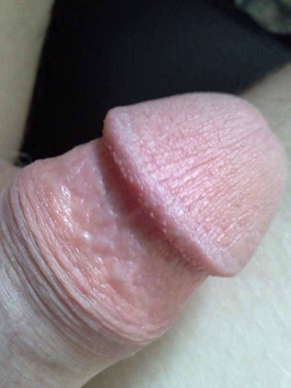 Red blood spot on penis