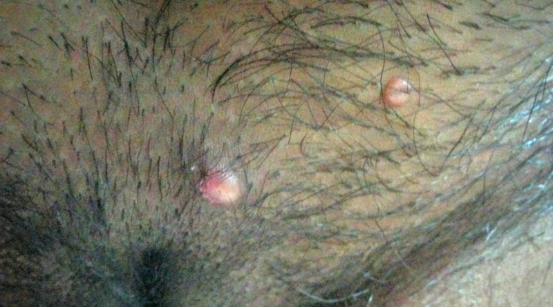 Vaginal Warts On Labia Genital warts on mons ...