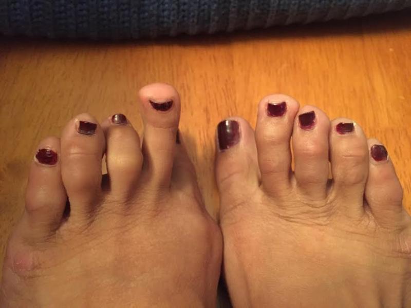 Bilderesultat for gross feet