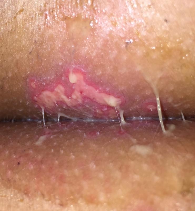 Itchy genitals anus