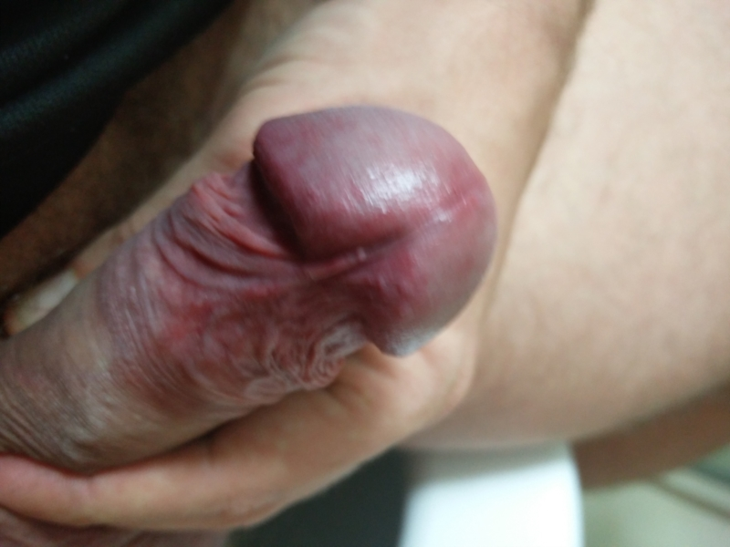 Pity, Burning sensation on tip of penis