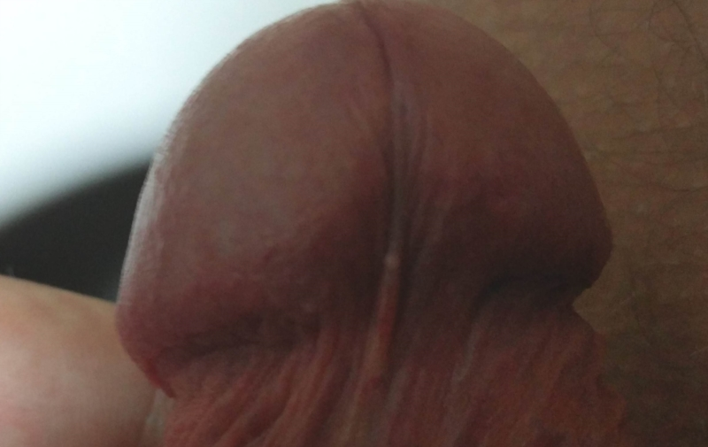 Burning sensation on tip of penis