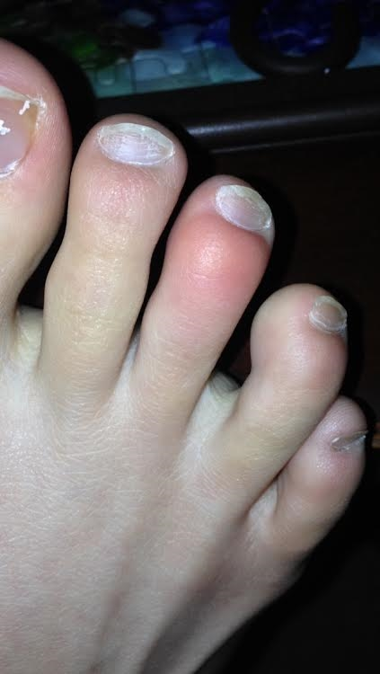 itchy bump on toe