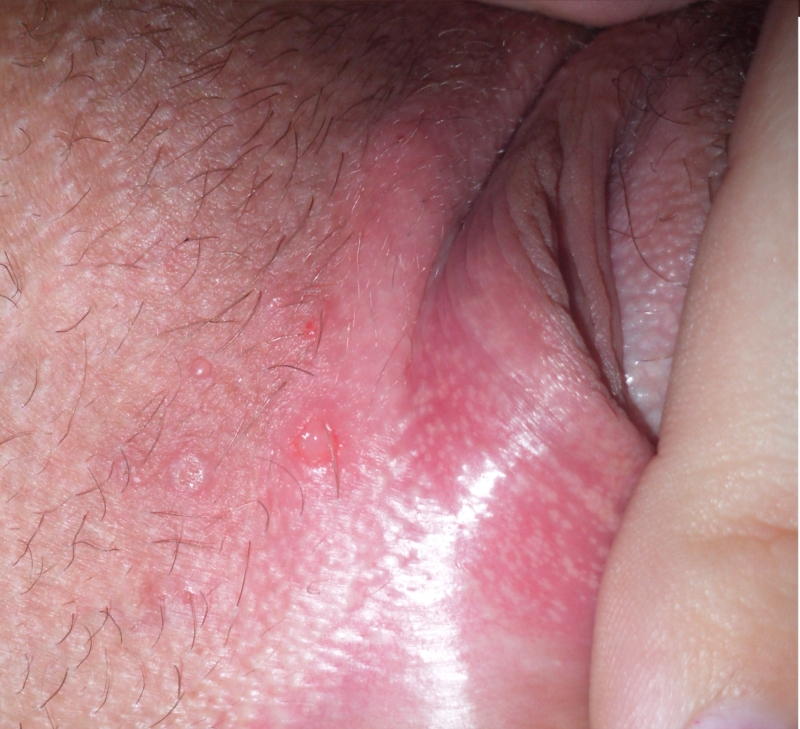 clit Bumps on