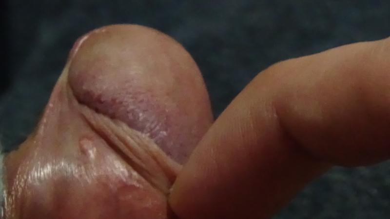 White Skin On Penis 76