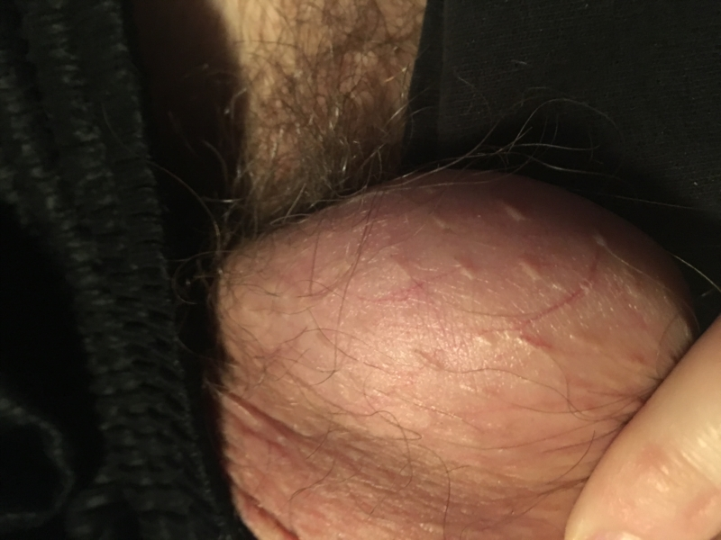Scrotum Bumps and Cysts Causes With Management