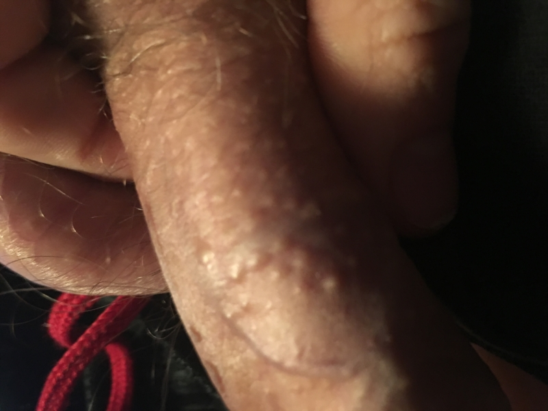 Cream for the treatment of cold sores on the penis