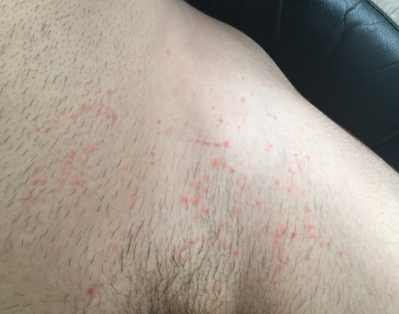 underwear area rash non itchy thread discussing