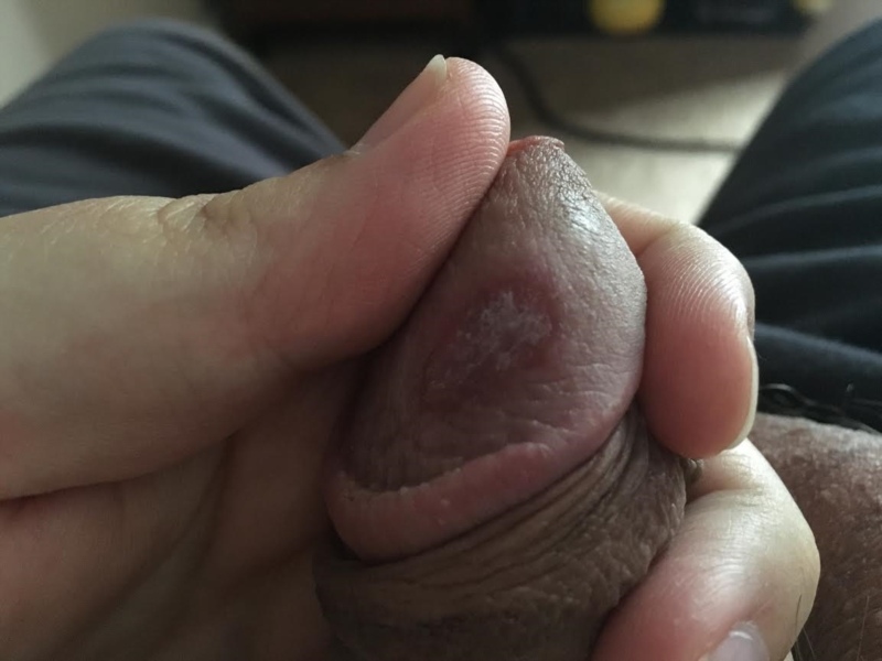 Small blisters on the head of the penis