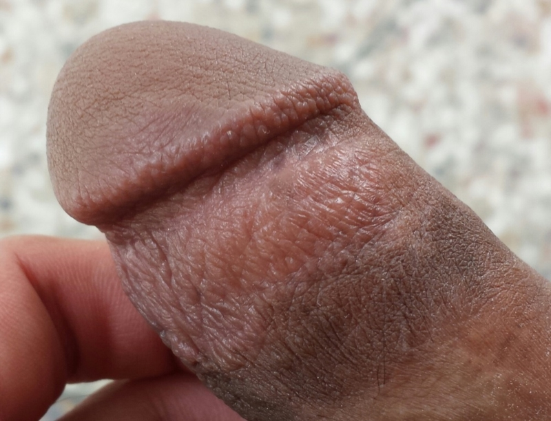 Dry Penis Skin Causes And Treatments