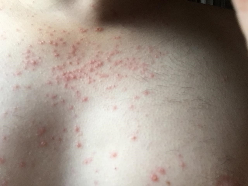Does this look like an hiv rash thread discussing does for What does a caterpillar rash look like