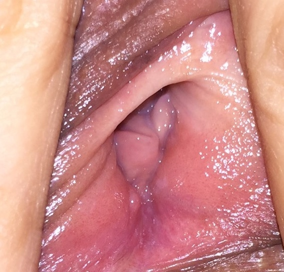 the vaginal right hole
